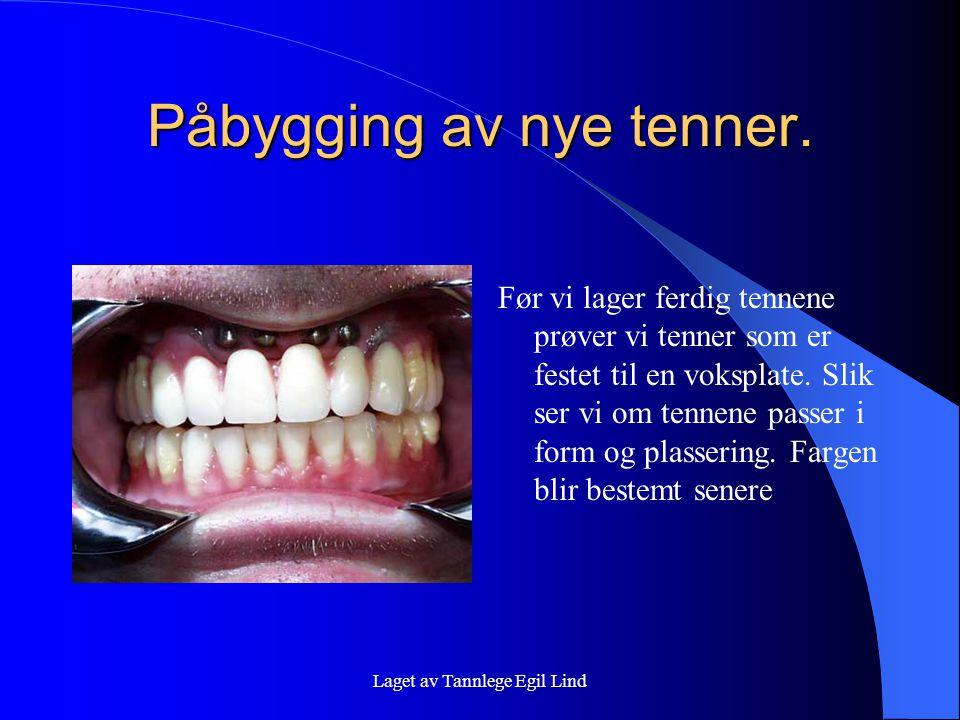 Laget av Tannlege Egil Lind Påbygging av nye tenner. Før vi lager ferdig tennene prøver vi tenner som er festet til en voksplate. Slik ser vi om tenne