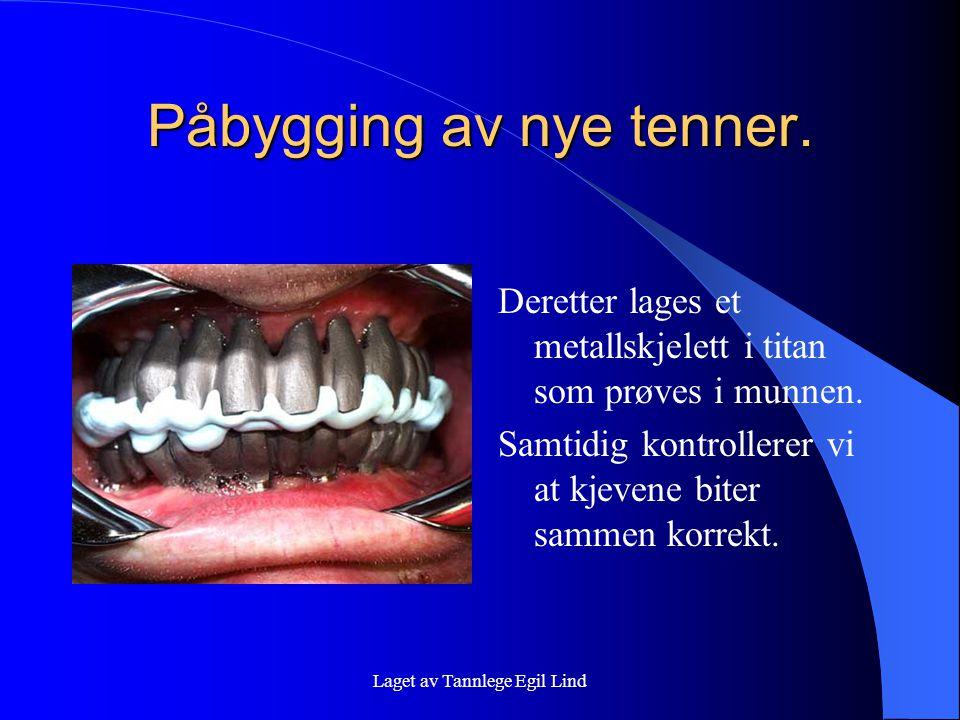 Laget av Tannlege Egil Lind Påbygging av nye tenner. Deretter lages et metallskjelett i titan som prøves i munnen. Samtidig kontrollerer vi at kjevene
