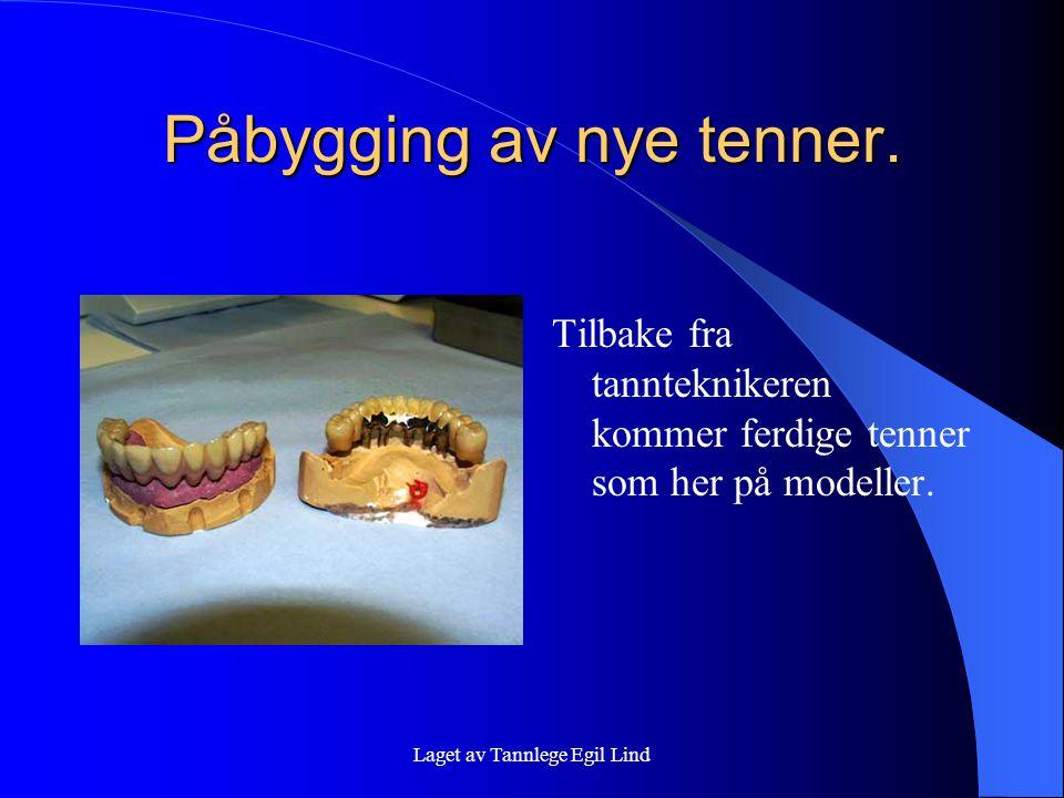 Laget av Tannlege Egil Lind Påbygging av nye tenner. Tilbake fra tannteknikeren kommer ferdige tenner som her på modeller.