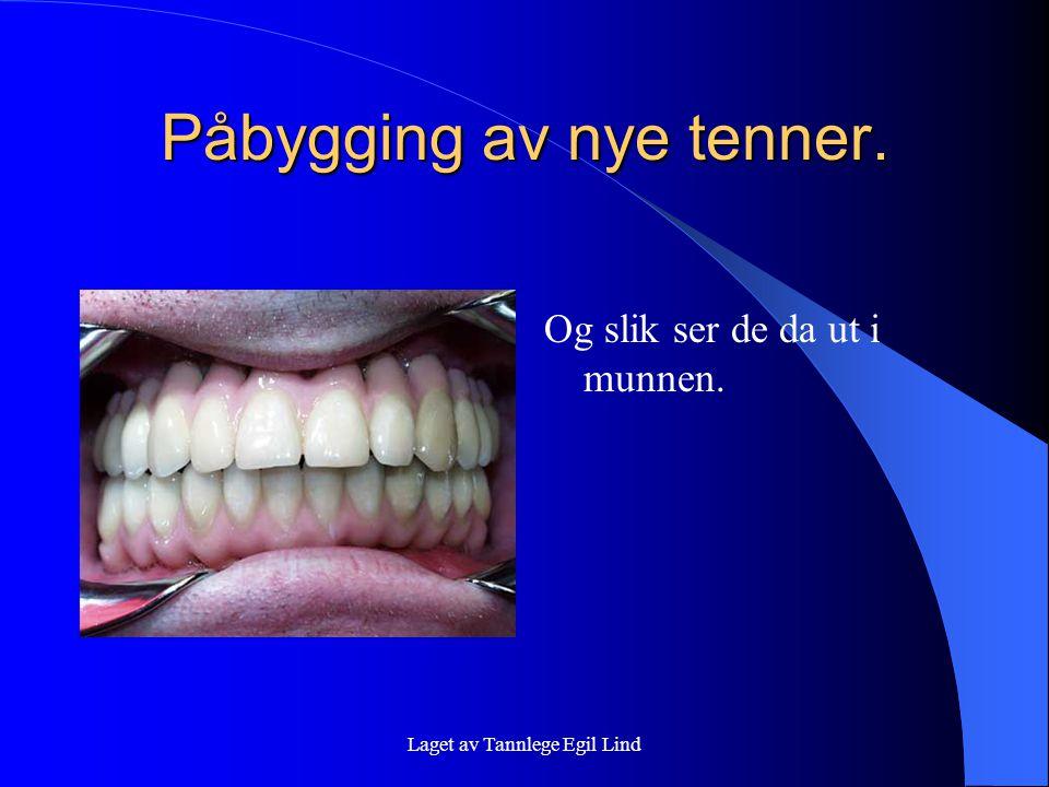 Laget av Tannlege Egil Lind Påbygging av nye tenner. Og slik ser de da ut i munnen.