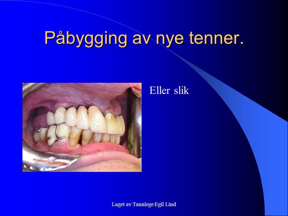 Laget av Tannlege Egil Lind Påbygging av nye tenner. Eller slik