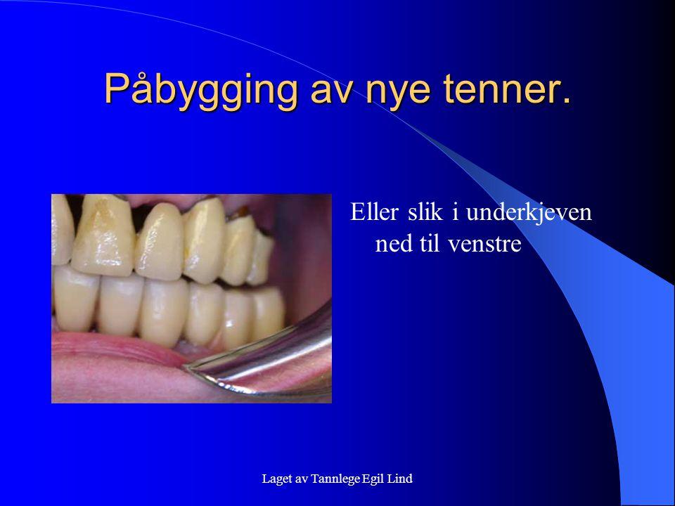 Laget av Tannlege Egil Lind Påbygging av nye tenner. Eller slik i underkjeven ned til venstre
