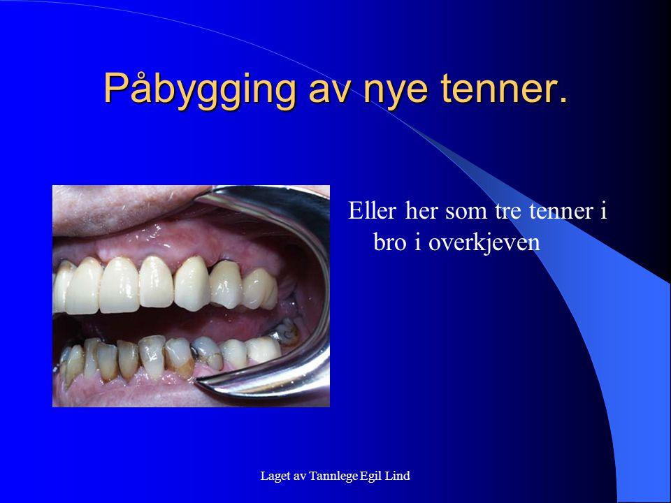 Laget av Tannlege Egil Lind Påbygging av nye tenner. Eller her som tre tenner i bro i overkjeven