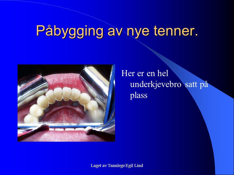 Laget av Tannlege Egil Lind Påbygging av nye tenner. Her er en hel underkjevebro satt på plass