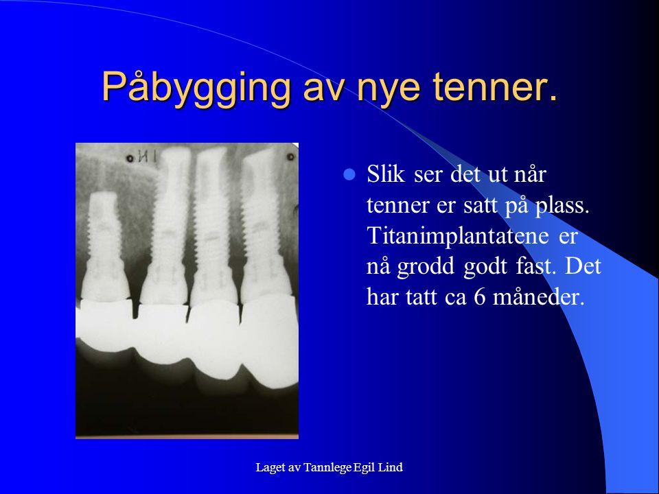 Laget av Tannlege Egil Lind Påbygging av nye tenner.  Slik ser det ut når tenner er satt på plass. Titanimplantatene er nå grodd godt fast. Det har t