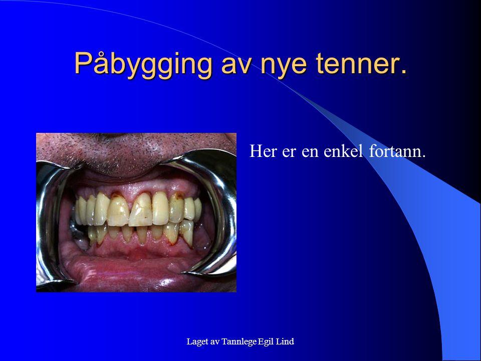 Laget av Tannlege Egil Lind Påbygging av nye tenner. Her er en enkel fortann.