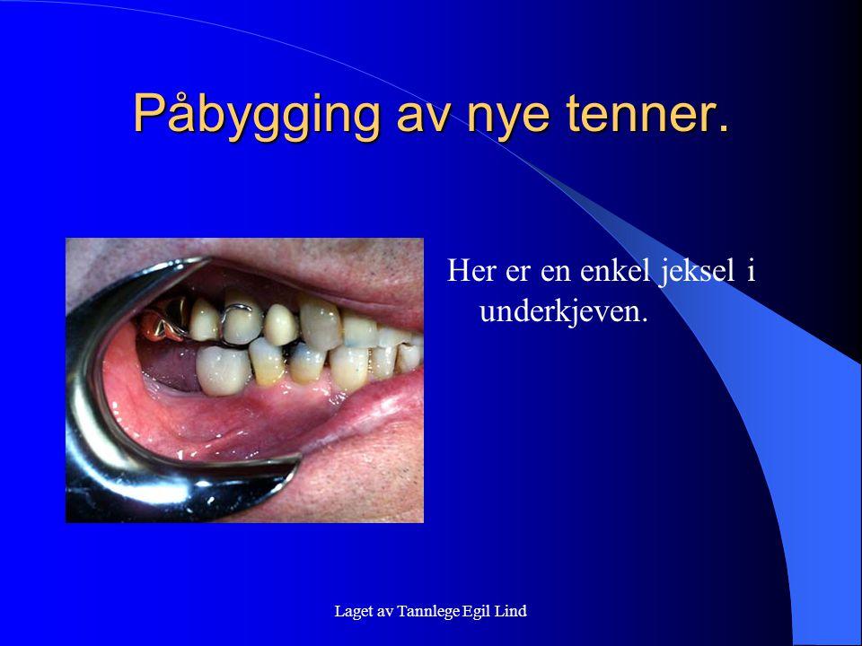 Laget av Tannlege Egil Lind Påbygging av nye tenner. Her er en enkel jeksel i underkjeven.