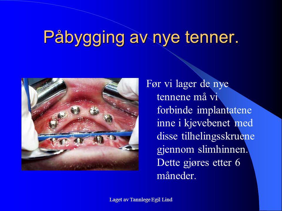 Laget av Tannlege Egil Lind Påbygging av nye tenner. Før vi lager de nye tennene må vi forbinde implantatene inne i kjevebenet med disse tilhelingsskr