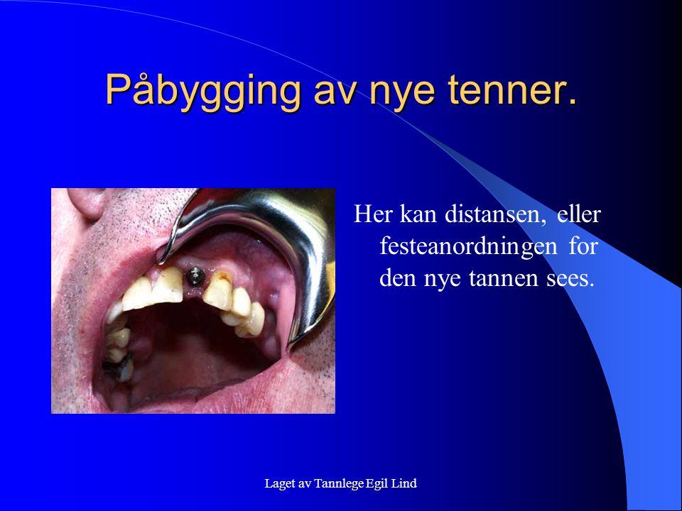 Laget av Tannlege Egil Lind Påbygging av nye tenner. Her kan distansen, eller festeanordningen for den nye tannen sees.
