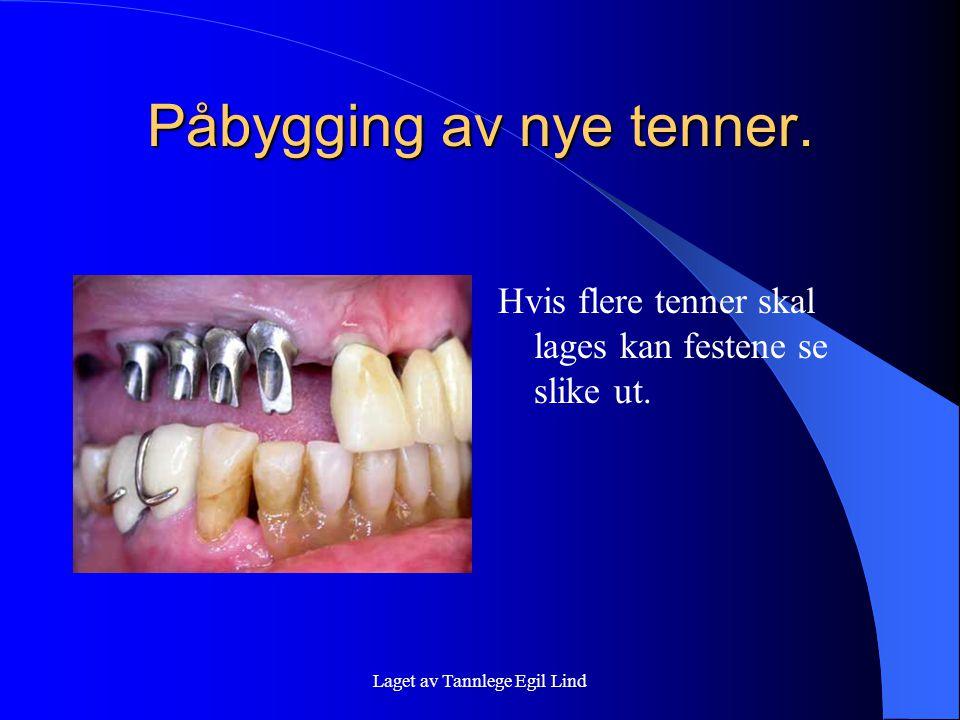 Laget av Tannlege Egil Lind Påbygging av nye tenner. Hvis flere tenner skal lages kan festene se slike ut.
