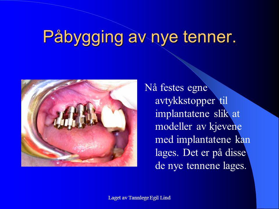 Laget av Tannlege Egil Lind Påbygging av nye tenner. Nå festes egne avtykkstopper til implantatene slik at modeller av kjevene med implantatene kan la