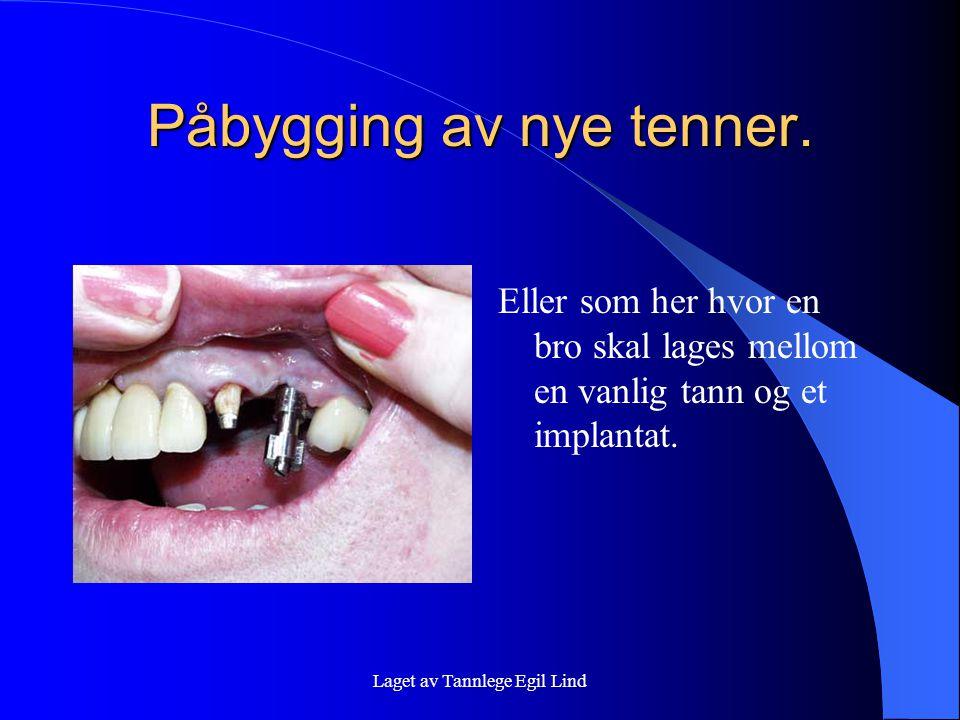 Laget av Tannlege Egil Lind Påbygging av nye tenner. Eller som her hvor en bro skal lages mellom en vanlig tann og et implantat.