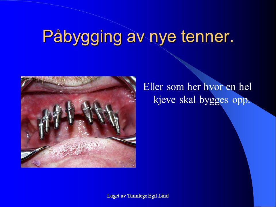 Laget av Tannlege Egil Lind Påbygging av nye tenner. Eller som her hvor en hel kjeve skal bygges opp.