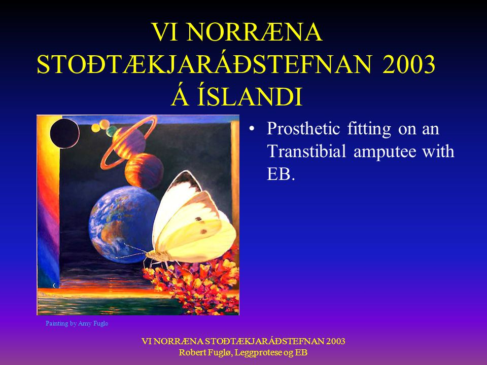 VI NORRÆNA STOÐTÆKJARÁÐSTEFNAN 2003 Robert Fuglø, Leggprotese og EB Wounds can occur: •Reasons: •To many socks=pressure •To small liner •The wounds need time to heal before using the prosthesis again.