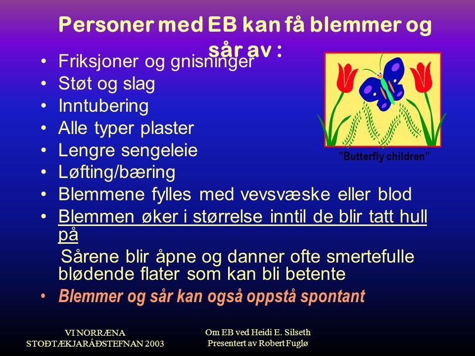 VI NORRÆNA STOÐTÆKJARÁÐSTEFNAN 2003 Om EB ved Heidi E. Silseth Presentert av Robert Fuglø Personer med EB kan få blemmer og sår av : •Friksjoner og gn