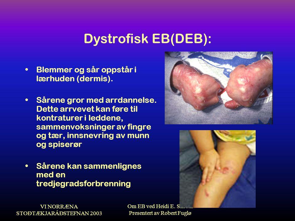 VI NORRÆNA STOÐTÆKJARÁÐSTEFNAN 2003 Om EB ved Heidi E. Silseth Presentert av Robert Fuglø Dystrofisk EB(DEB): •Blemmer og sår oppstår i lærhuden (derm
