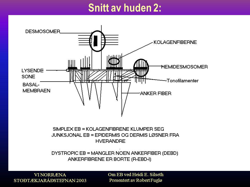 VI NORRÆNA STOÐTÆKJARÁÐSTEFNAN 2003 Om EB ved Heidi E. Silseth Presentert av Robert Fuglø Snitt av huden 2: