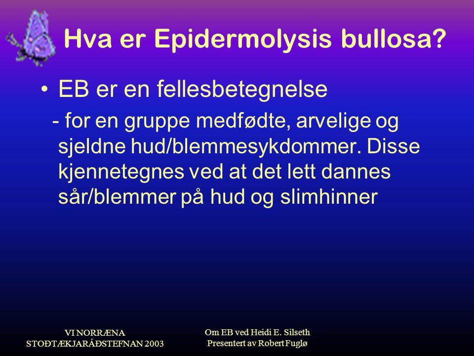 VI NORRÆNA STOÐTÆKJARÁÐSTEFNAN 2003 Om EB ved Heidi E. Silseth Presentert av Robert Fuglø Hva er Epidermolysis bullosa? •EB er en fellesbetegnelse - f