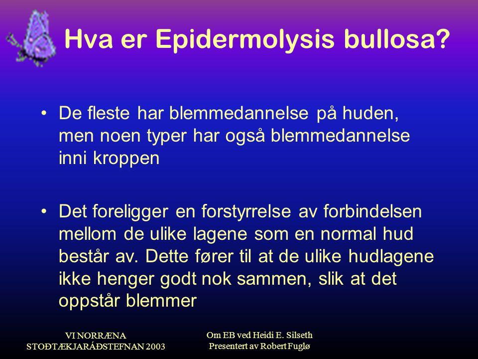 VI NORRÆNA STOÐTÆKJARÁÐSTEFNAN 2003 Om EB ved Heidi E. Silseth Presentert av Robert Fuglø Hva er Epidermolysis bullosa? •De fleste har blemmedannelse