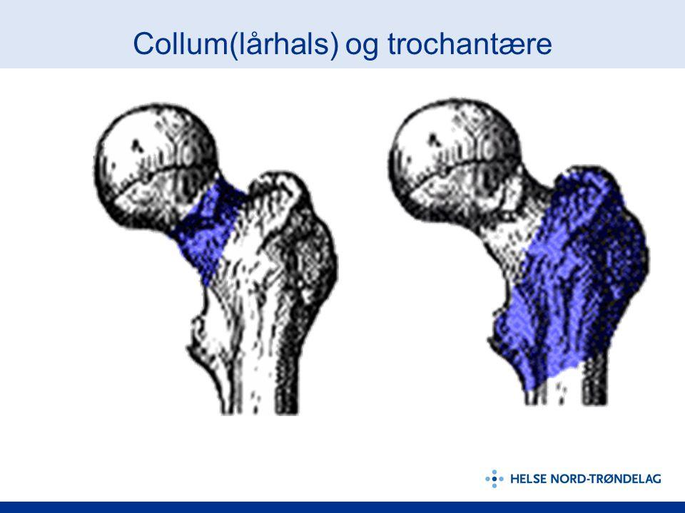 Collum(lårhals) og trochantære