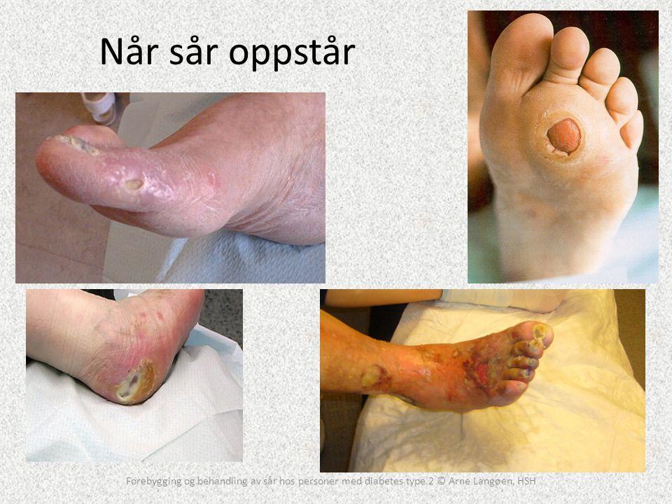 Når sår oppstår Forebygging og behandling av sår hos personer med diabetes type 2 © Arne Langøen, HSH