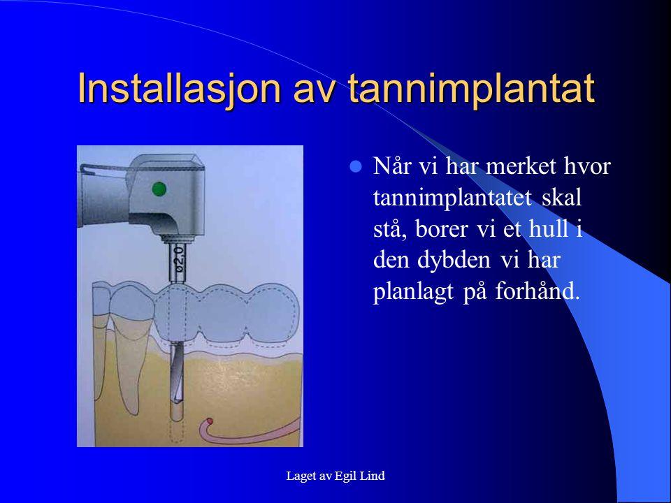 Laget av Egil Lind Installasjon av tannimplantat  Når vi har merket hvor tannimplantatet skal stå, borer vi et hull i den dybden vi har planlagt på forhånd.