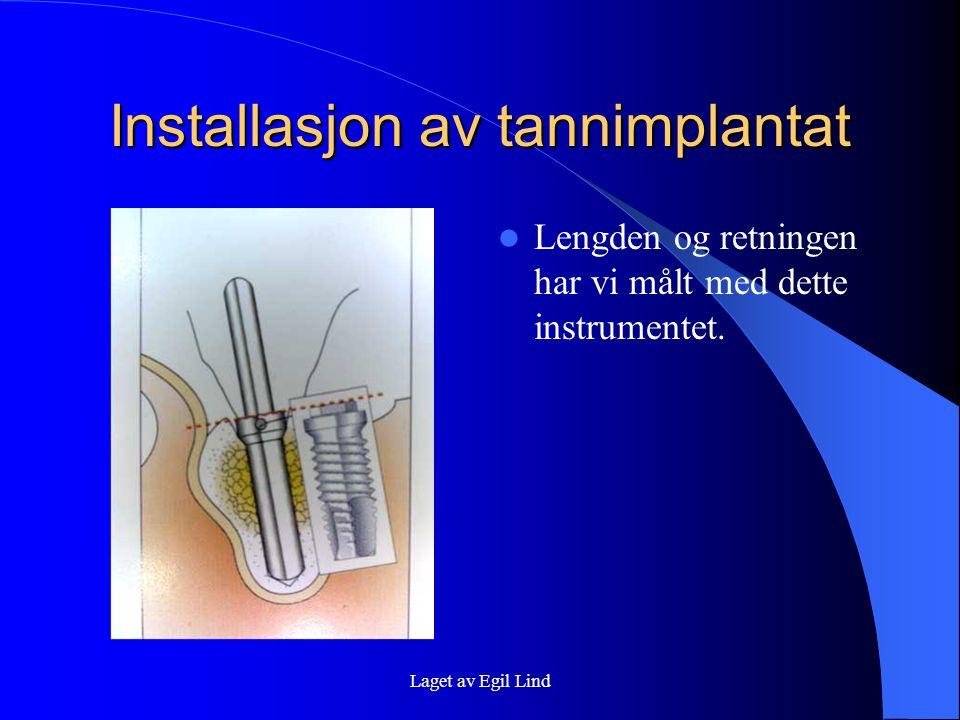 Laget av Egil Lind Installasjon av tannimplantat  Lengden og retningen har vi målt med dette instrumentet.