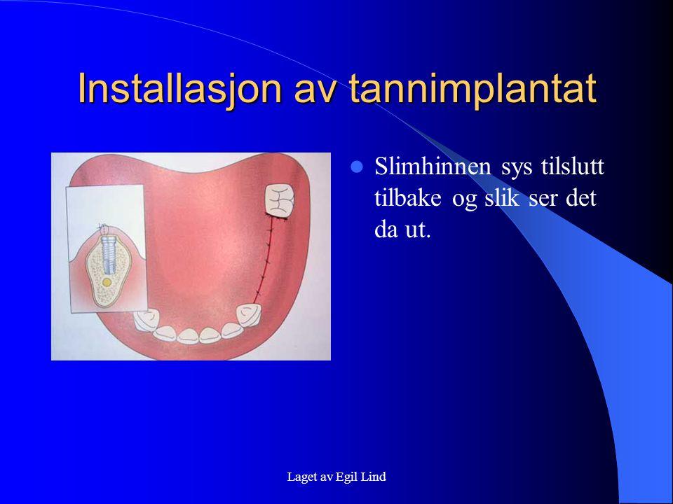 Laget av Egil Lind Installasjon av tannimplantat  Slimhinnen sys tilslutt tilbake og slik ser det da ut.