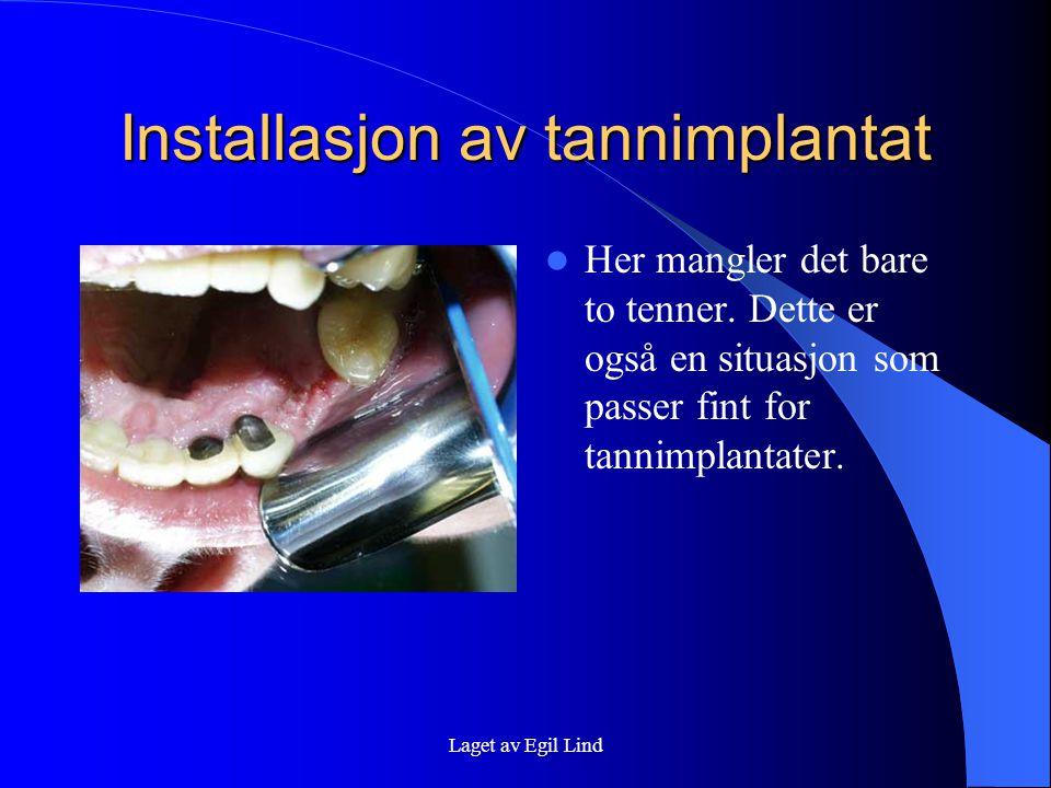 Laget av Egil Lind Installasjon av tannimplantat  Her mangler det bare to tenner.