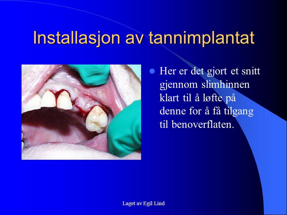 Laget av Egil Lind Installasjon av tannimplantat  På dette bildet ser du hvordan vi borer i benoverflaten for å lage et merke der tannimplantatet skal stå