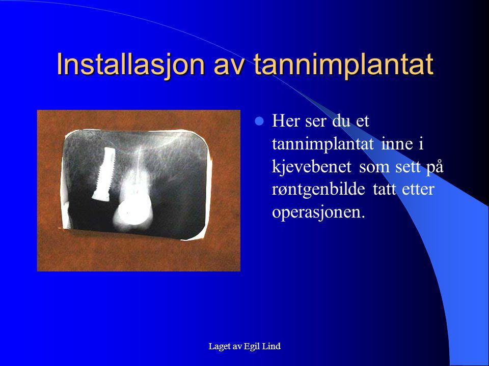 Laget av Egil Lind Installasjon av tannimplantat  Her ser du et tannimplantat inne i kjevebenet som sett på røntgenbilde tatt etter operasjonen.