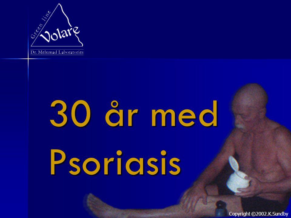 30 år med Psoriasis Copyright ©2002.K.Sundby