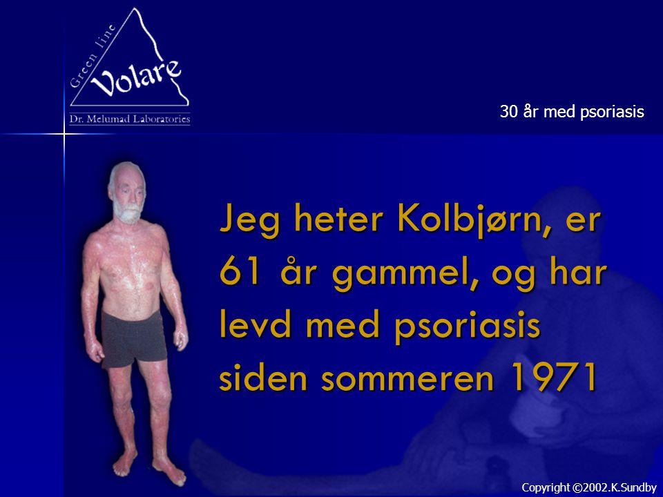 Jeg heter Kolbjørn, er 61 år gammel, og har levd med psoriasis siden sommeren 1971 30 år med psoriasis Copyright ©2002.K.Sundby
