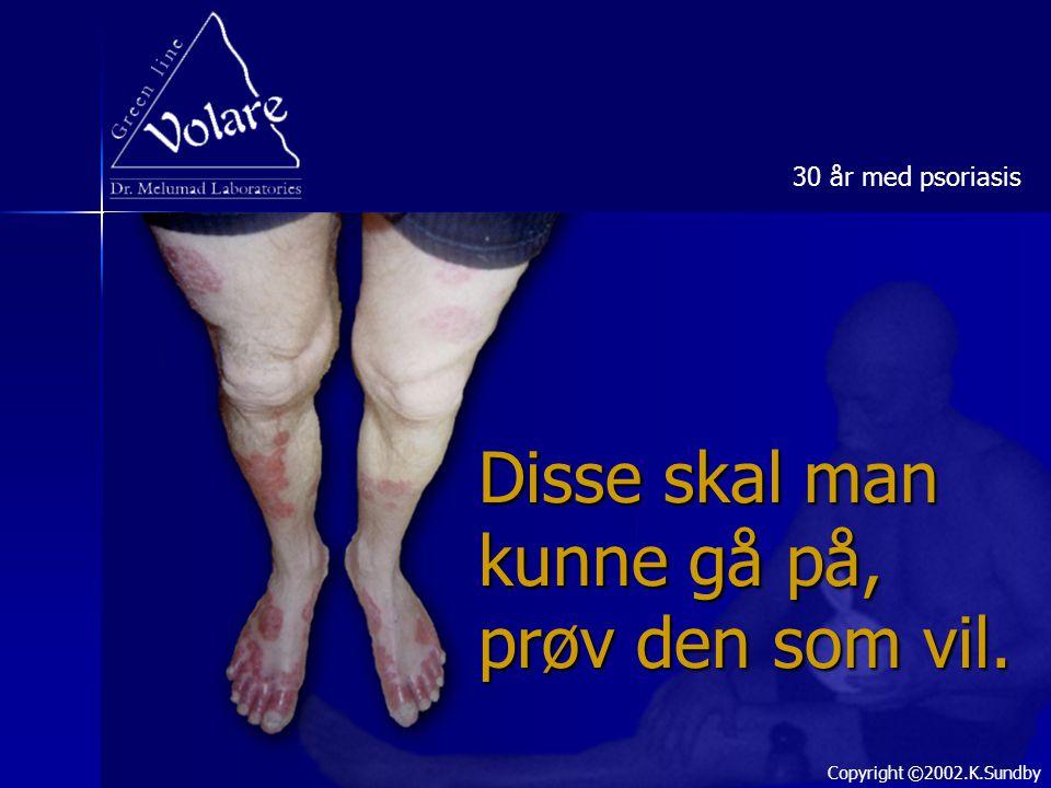 Disse skal man kunne gå på, prøv den som vil. 30 år med psoriasis Copyright ©2002.K.Sundby
