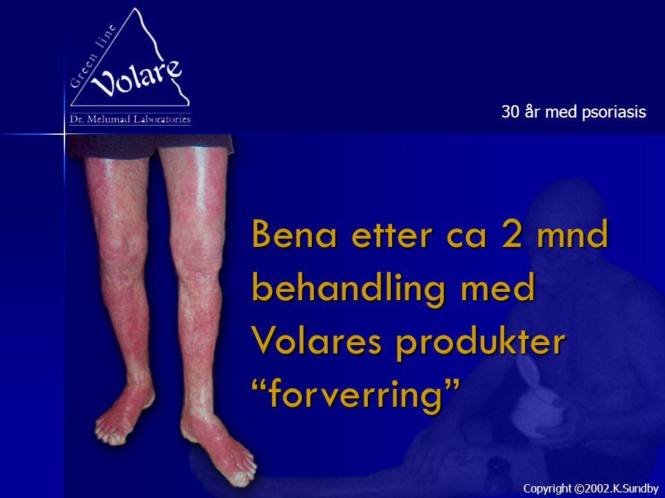 "Bena etter ca 2 mnd behandling med Volares produkter ""forverring"" 30 år med psoriasis Copyright ©2002.K.Sundby"