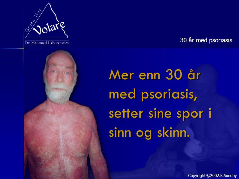 Mer enn 30 år med psoriasis, setter sine spor i sinn og skinn. 30 år med psoriasis Copyright ©2002.K.Sundby