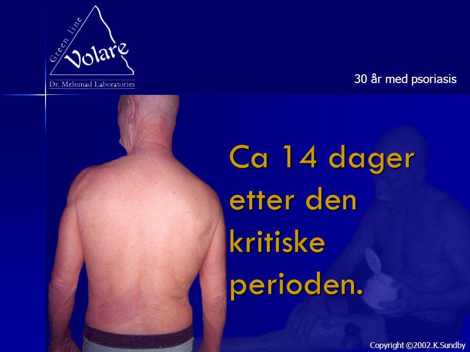 Ca 14 dager etter den kritiske perioden. 30 år med psoriasis Copyright ©2002.K.Sundby