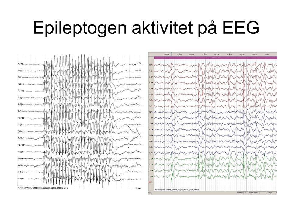 Noen sentrale begreper •Epileptiske anfall: –Observerbare, forbigående (95% < 2 – 5 min) hjernefunksjonsforstyrrelser (motoriske, sensoriske, psykiske eller kognitive) utløst av eksessiv, hypersynkron neuronal aktivitet ledsaget av karakteristiske EEG-forandringer (epileptogen aktivitet).