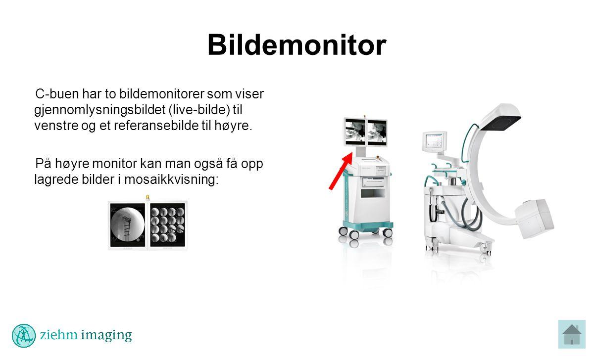 Bildemonitor C-buen har to bildemonitorer som viser gjennomlysningsbildet (live-bilde) til venstre og et referansebilde til høyre.