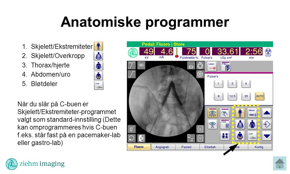 Anatomiske programmer 1.Skjelett/Ekstremiteter 2.Skjelett/Overkropp 3.Thorax/hjerte 4.Abdomen/uro 5.Bløtdeler Når du slår på C-buen er Skjelett/Ekstremiteter-programmet valgt som standard-innstilling (Dette kan omprogrammeres hvis C-buen f.eks.