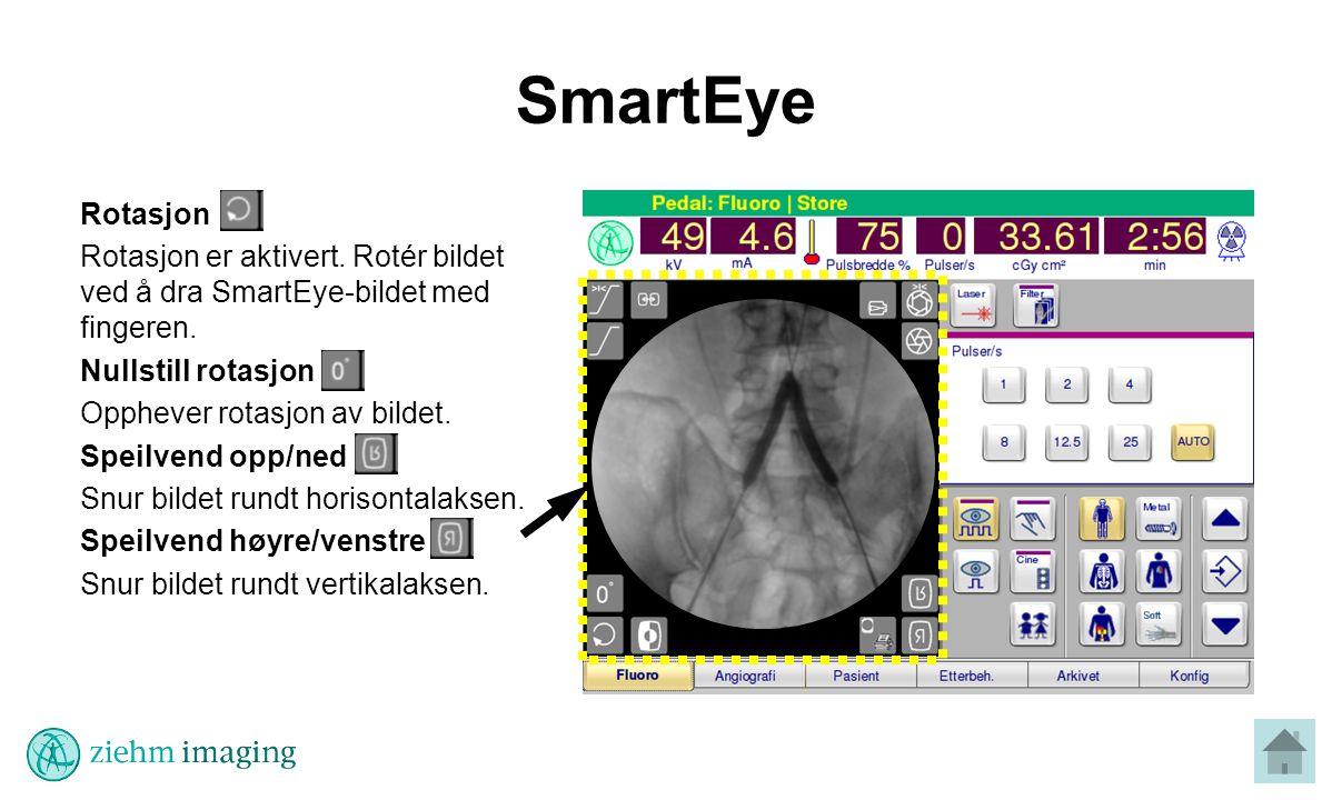 SmartEye Rotasjon Rotasjon er aktivert.Rotér bildet ved å dra SmartEye-bildet med fingeren.