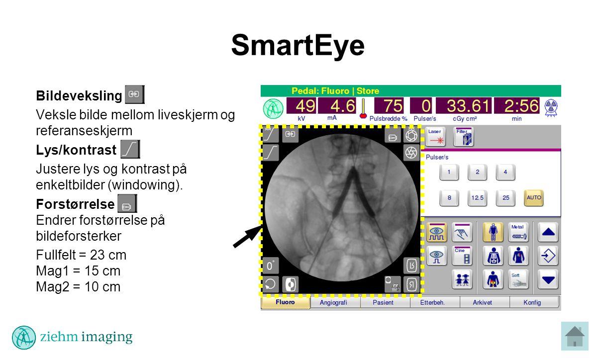SmartEye Bildeveksling Veksle bilde mellom liveskjerm og referanseskjerm Lys/kontrast Justere lys og kontrast på enkeltbilder (windowing).