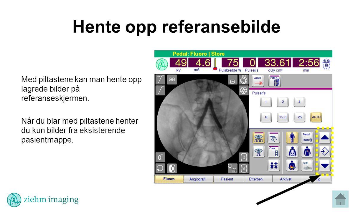 Hente opp referansebilde Med piltastene kan man hente opp lagrede bilder på referanseskjermen.