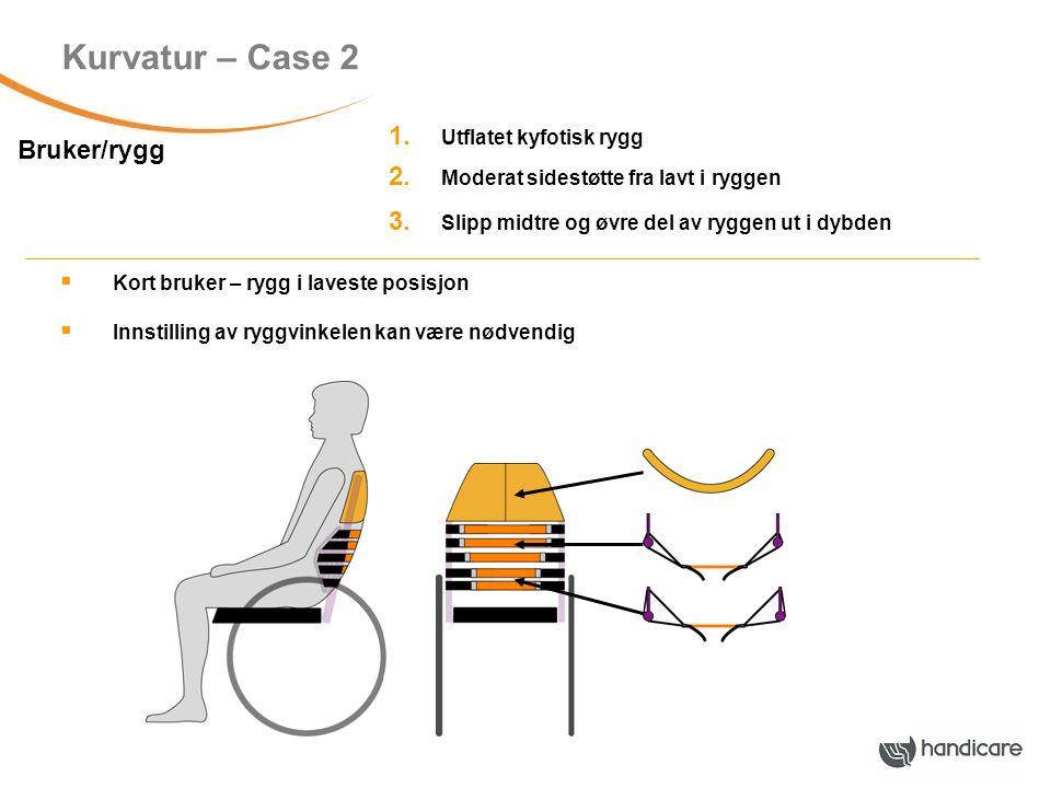 Kurvatur – Case 2 Bruker/rygg 1.Utflatet kyfotisk rygg 2.