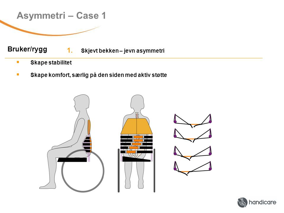 Asymmetri – Case 1 Bruker/rygg 1.