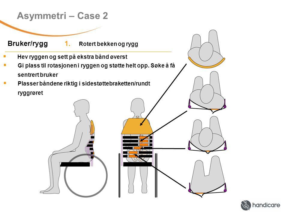 Asymmetri – Case 2 Bruker/rygg 1.