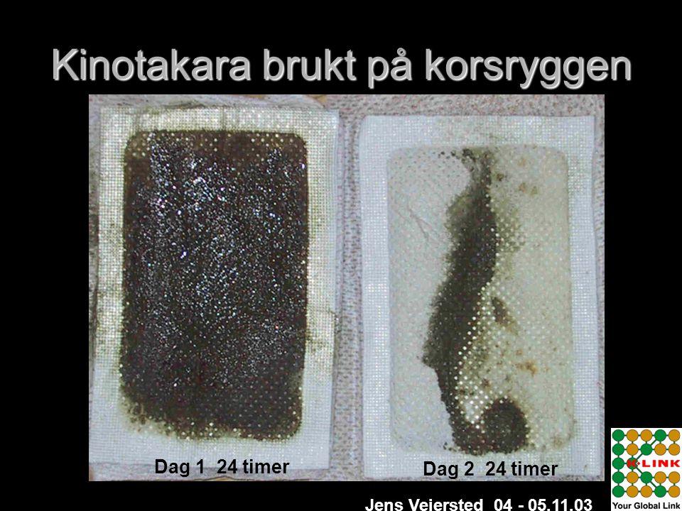 Kinotakara brukt på korsryggen Dag 1 24 timer Dag 2 24 timer Jens Veiersted 04 - 05.11.03
