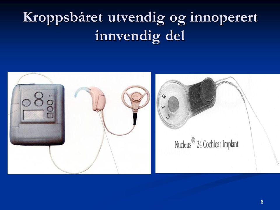 7 Senderspolen  Er antenne for å sende signal og energi til implantatet.