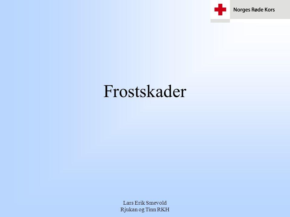 Lars Erik Smevold Rjukan og Tinn RKH Frostskader