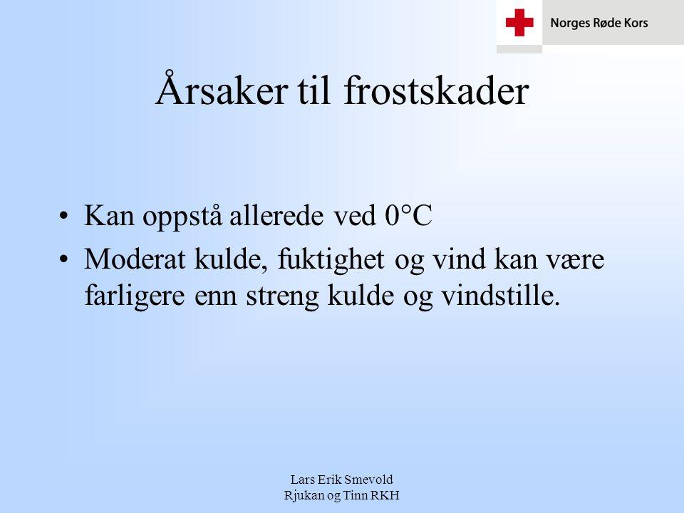 Lars Erik Smevold Rjukan og Tinn RKH Årsaker til frostskader •Kan oppstå allerede ved 0°C •Moderat kulde, fuktighet og vind kan være farligere enn str